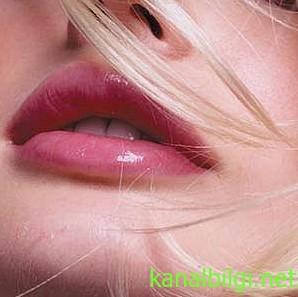 catlak-dudaklar-neden-olur-tedavisi